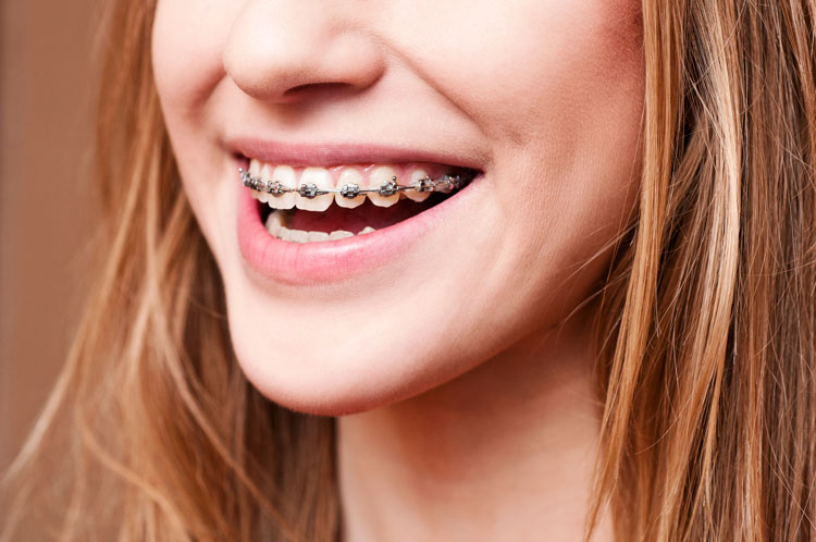 pomona childrens orthodontist